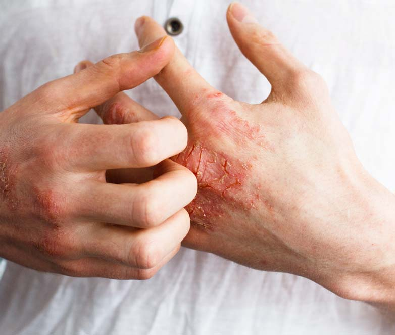 Dermatology: Eczema And Psoriasis Manchester, Cheshire & Lancashire