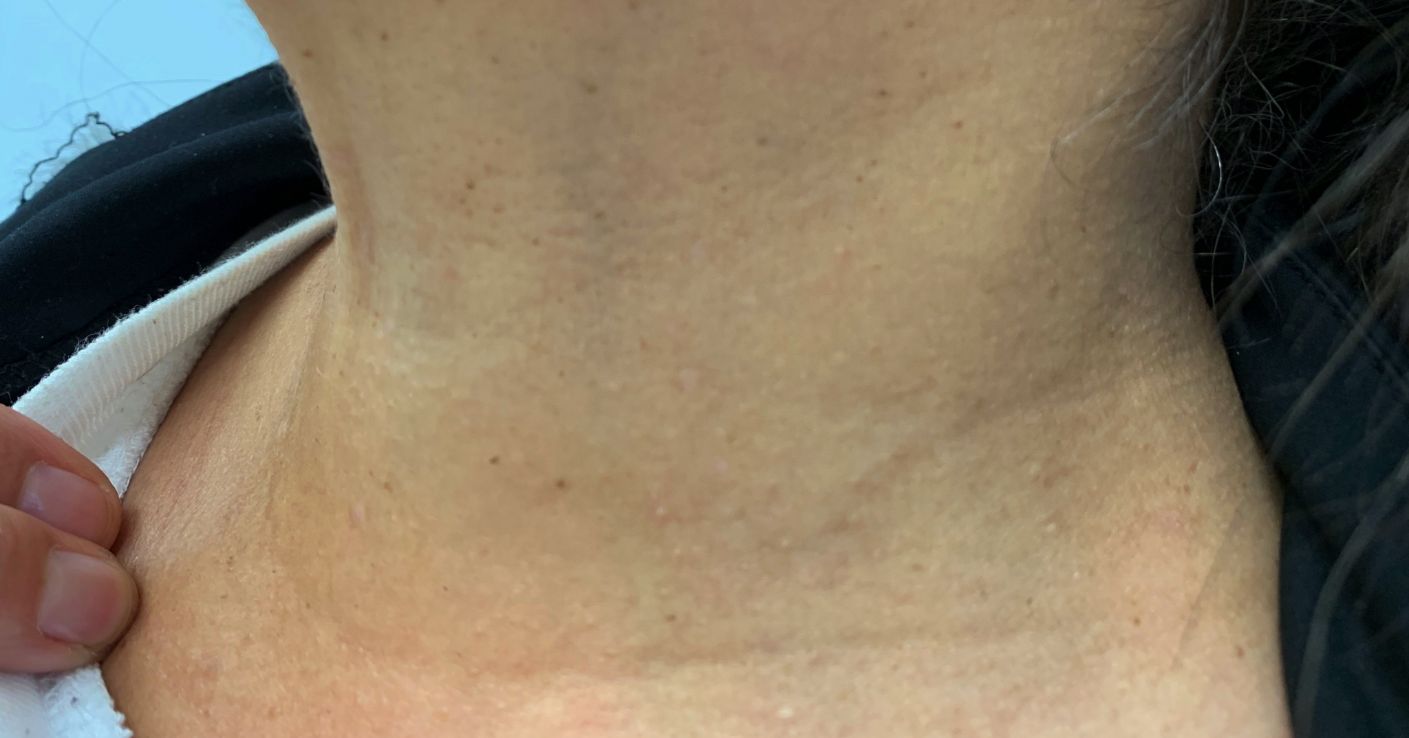 Skin Tag Removal Manchester Cheshire Lancashire Dr Nicole Dermatology