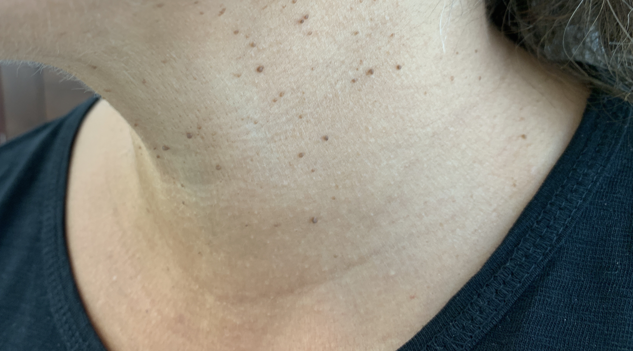 Skin Tag Removal Manchester Cheshire Lancashire Dr Nicole
